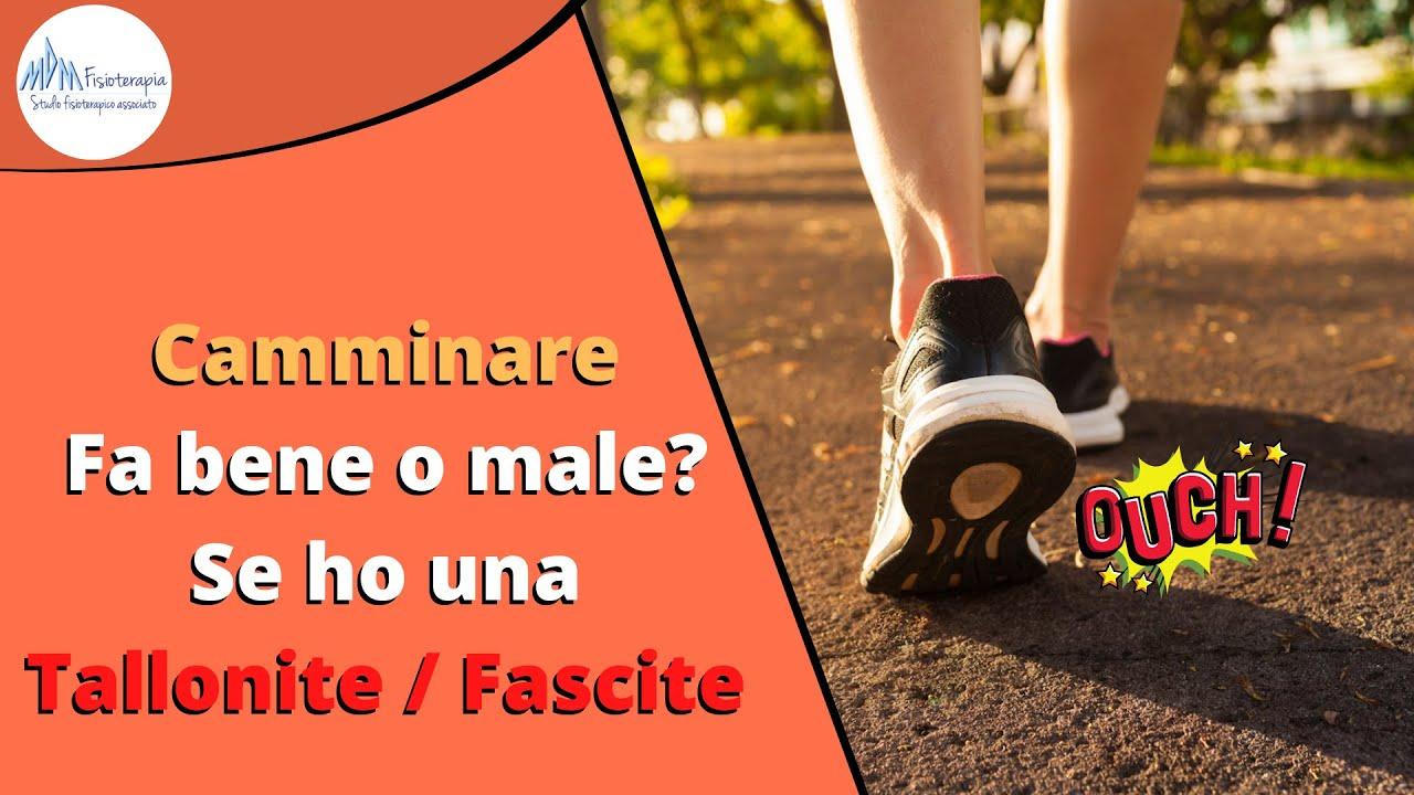 Camminare fa bene o male Se ho una Tallonite o una Fascite plantare?