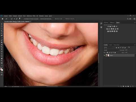 Clareando Os Dentes Com Uma Camada De Ajuste E Usando O Filtro De
