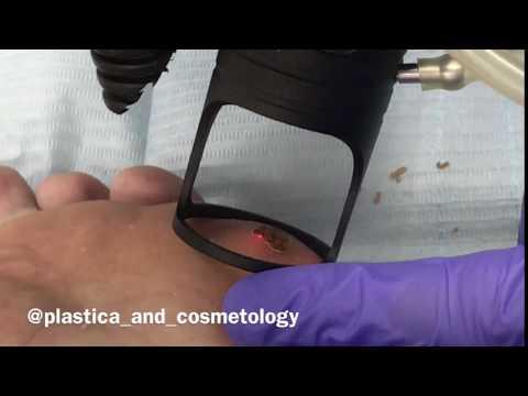 Лазерное удаление подошвенной бородавки