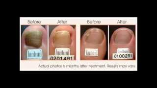 how to get rid of toenail fungus | how to get rid of toe fungus  | toenail fungus treatment