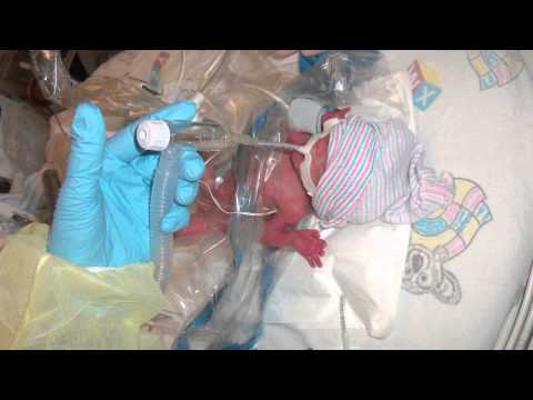 Baby Born at 26 Weeks – CHI Health NICU