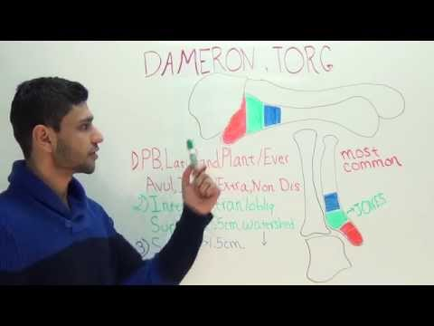 Dameron and Torg 5th metatarsal fracture classification