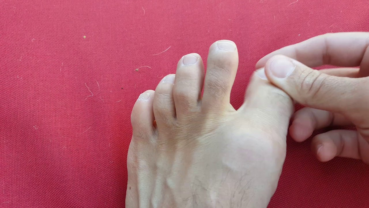 Big Toe Joint Pain And Problems Explained