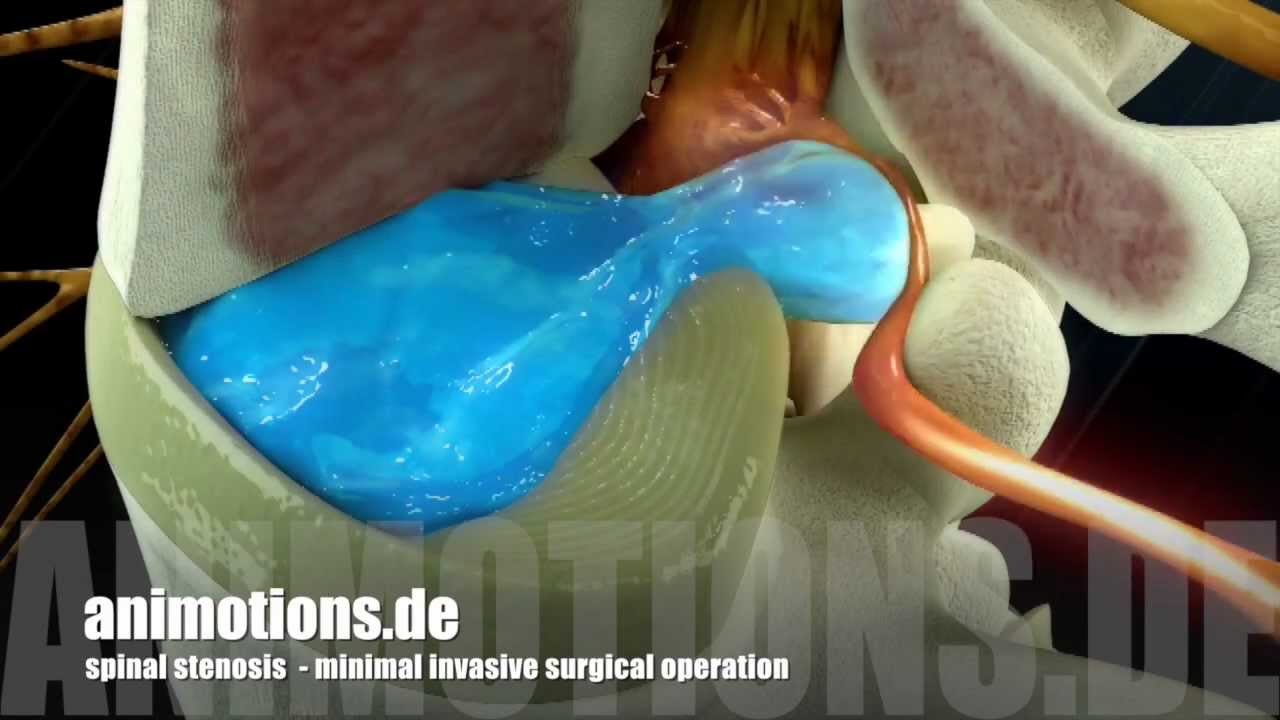 Spinal Stenosis Surgery 3D Animation  YouTube