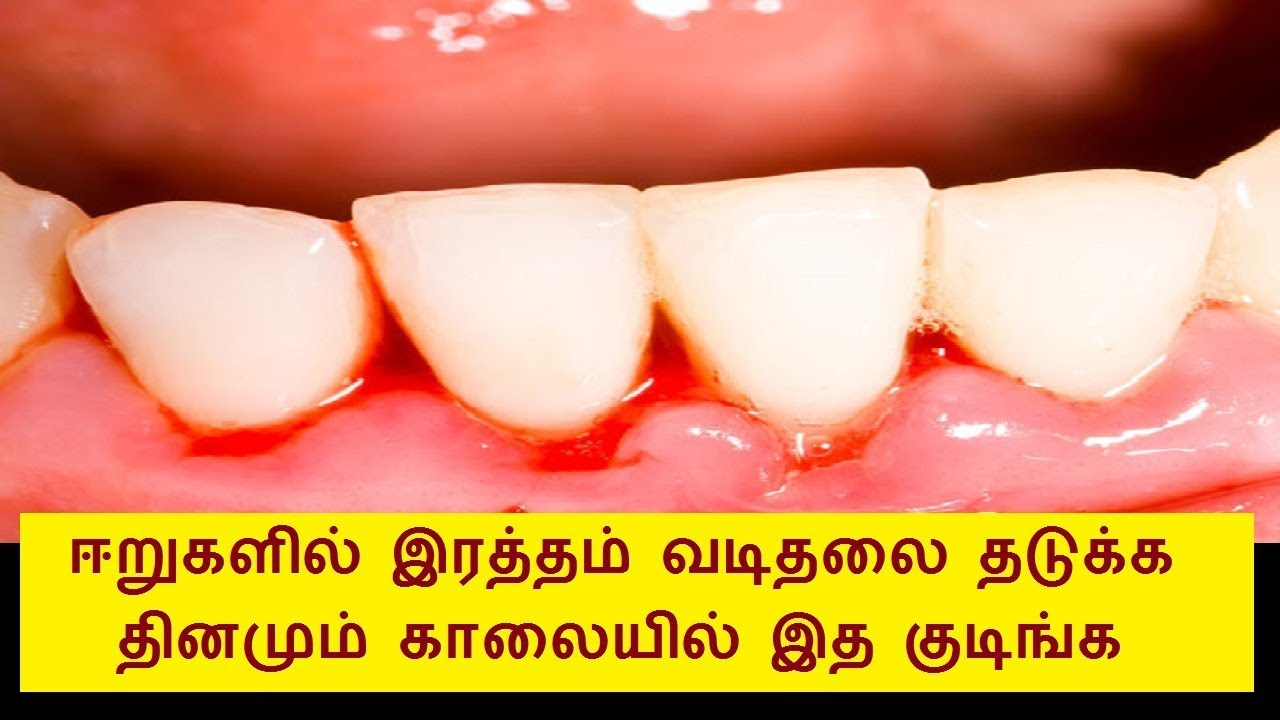 How To Protect Teeth In Tamil Teethwalls