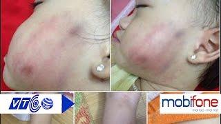Bé 16 tháng tuổi bị cô giáo đánh bầm tím | VTC