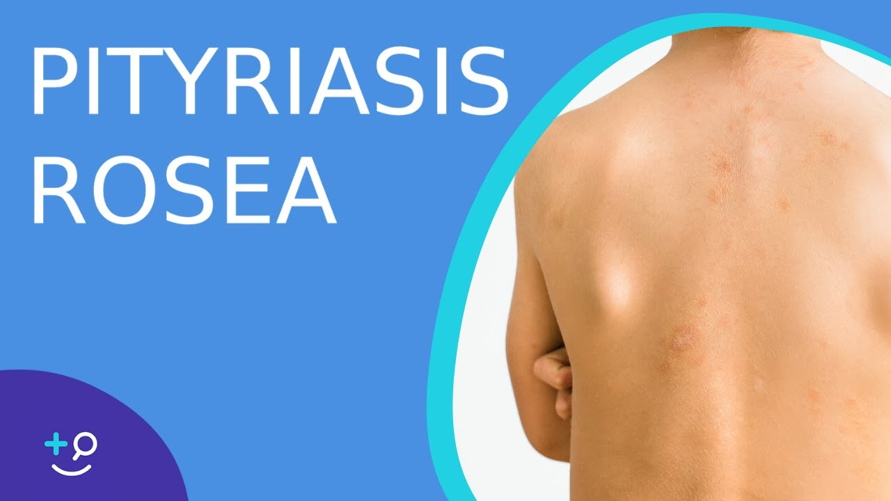 Pityriasis Rosea - American Osteopathic College of Dermatology (AOCD)
