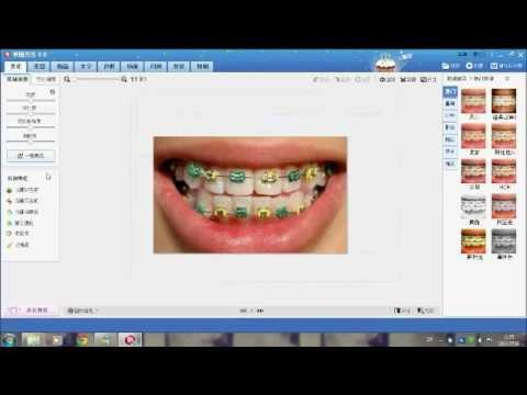 ดัดฟันด้วยโปรแกรมจีน