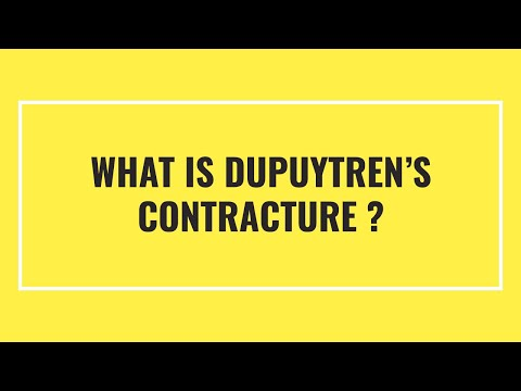 What is Dupuytren's Contracture, and Why does it Occur?