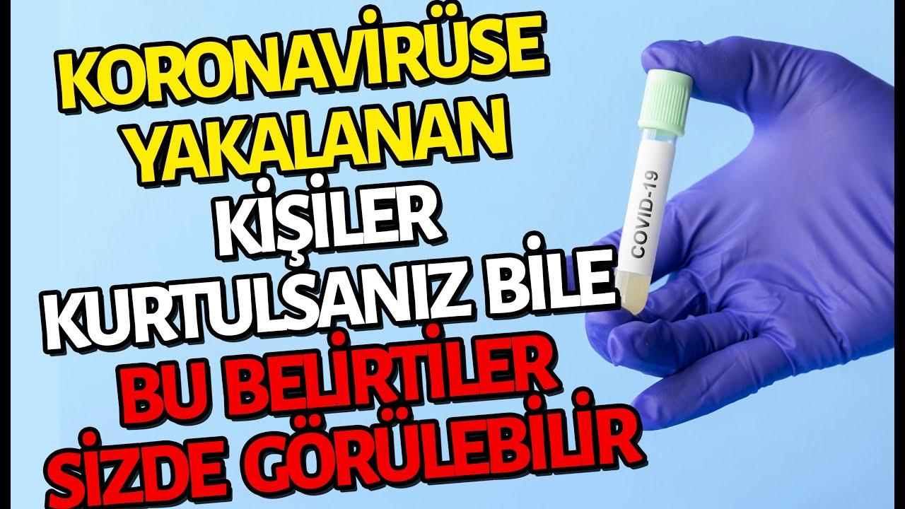 Koronavirüse Yakalanan Her 10 Kişiden 9'unda Bu Belirtiler Var