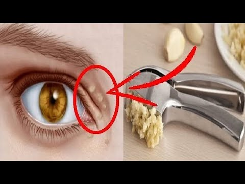 how-to-remove-the-cholesterol-deposits-around-your-eyes