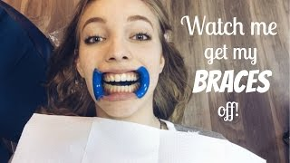 Watch me get my Braces off!!!