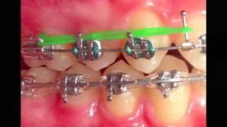 Tip #2. Cierre de espacios - 1001 Tips en Ortodoncia