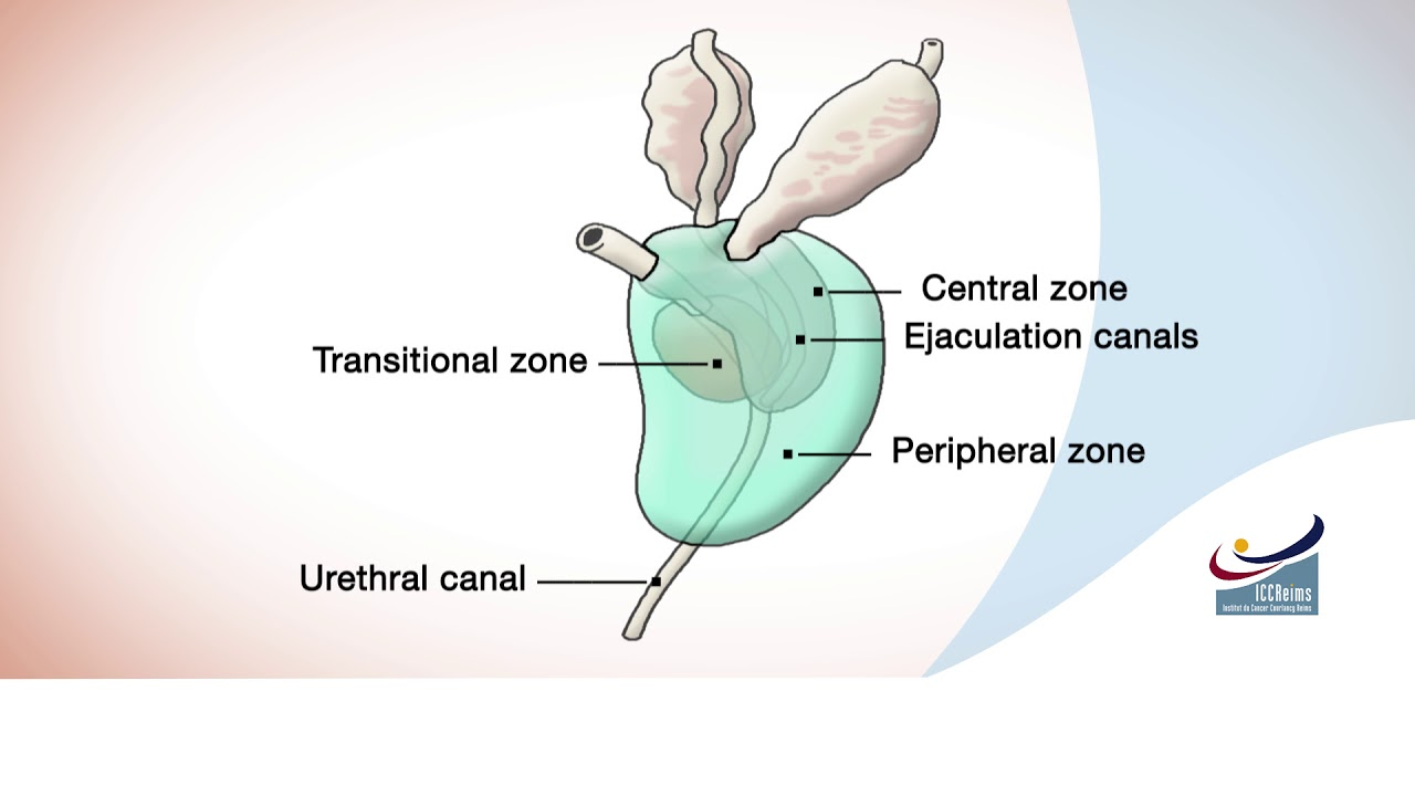 Anatomy Of The Prostate Cancer Youtube