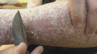 Psoriasis Goldmine   Picking and Scraping Part 2