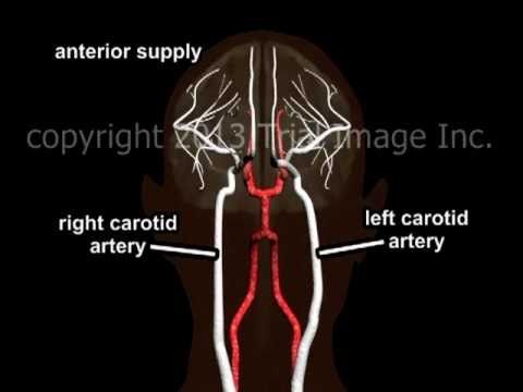 Blood Supply to the Brain - Animation and Narration by Cal Shipley, M.D.