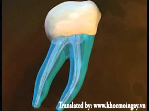 Phương pháp diệt tủy răng - www.khoemoingay.vn