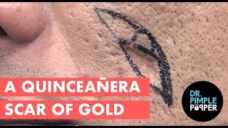 A Quinceañera Scar of Gold