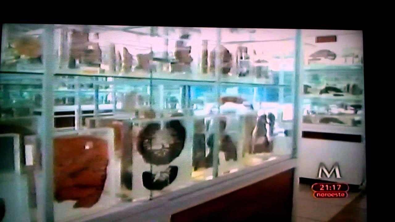 Museo de Patología del HGM único en el mundo - YouTube