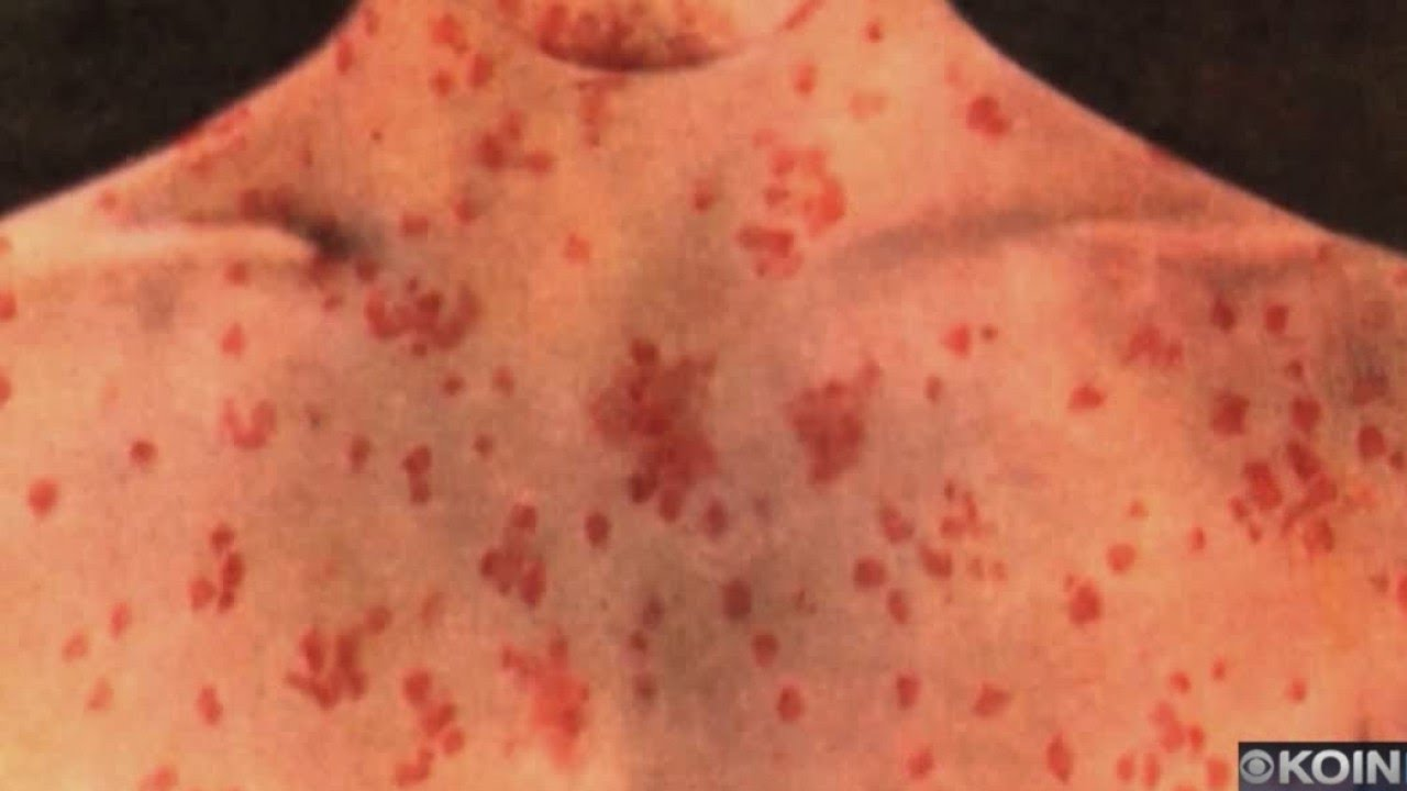 Third person with measles found in Multnomah County -- latest brings outbreak to 4