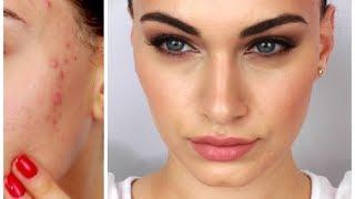 Fake Good Skin ♡ Rosie Huntington-Whitely Inspired + My Acne Treatment | RubyGolani Thumbnail