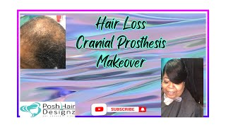 Hairloss Replacement Cranial Prosthesis Makeover