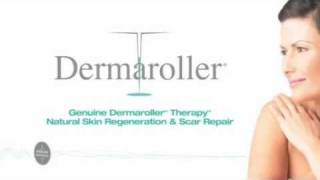 Dermaroller medical needling treatment for scars and wrinkles in Birmingham Thumbnail