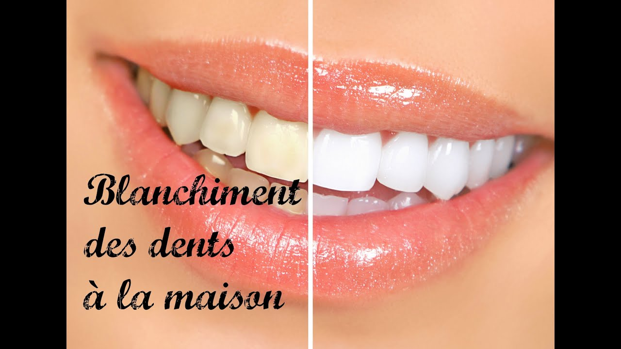 blanchiment des dents la maison youtube