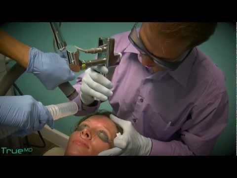 TrueMD Laser Peel Treatment -  Lakeland, Florida            TrueHope.TV   -Video Production