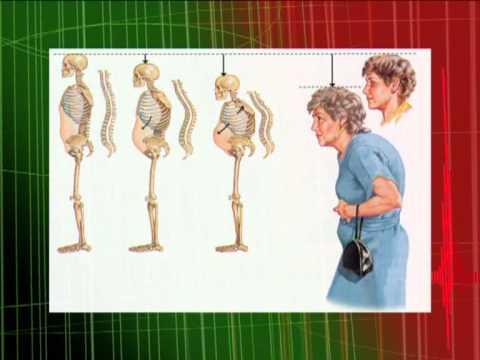 Признаки остеопороза, профилактика и лечение болезни