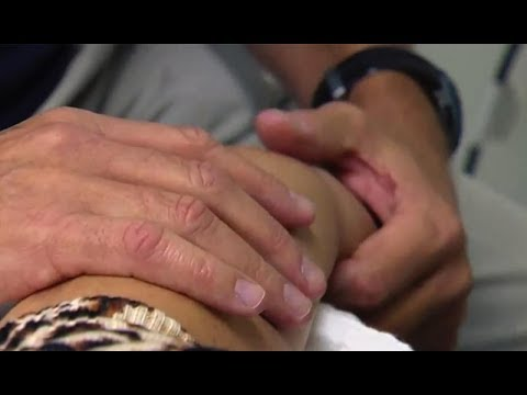 A Handful of Reasons for Hand Therapy
