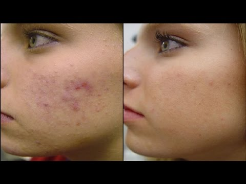 Accutane Side Effects Exposed - YouTube
