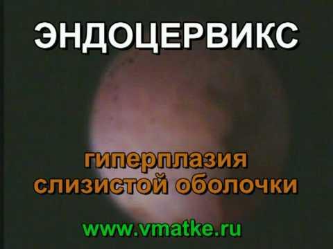 Эндоцервикс. Гиперплазия слизистой оболочки.