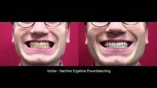 Bleaching-Vergleich.de: Zu Gast bei Dr. Niess, Teil 3: Vorkontrolle/Nachkontrolle (Berlin) Thumbnail