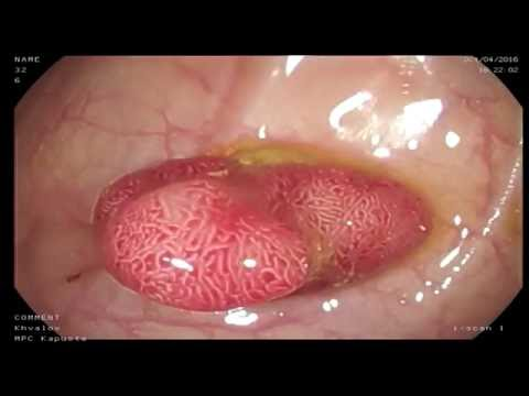 Аденоматозный полип сигмовидной кишки. Колоноскопия Череповец