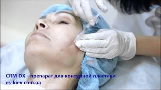 Обучение инъекциям гиалуроновой кислоты CRM DX видео