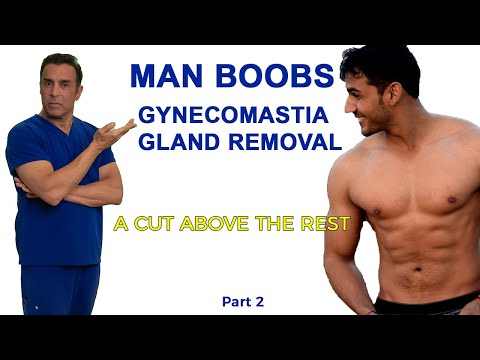 Gynecomastia Gland Removal Surgery Part 2