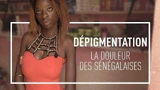 Dépigmentation : la douleur des Sénégalaises