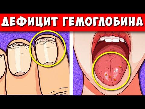 13 Признаков низкого Гемоглобина которые Нельзя Игнорировать, Как быстро поднять Гемоглобин