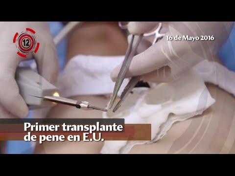 transplante de pene fotos