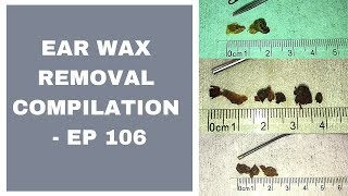EAR WAX REMOVAL COMPILATION   EP 106