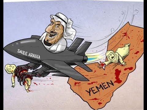 Saudi Arabia has no option in Yemen: World Food Program.