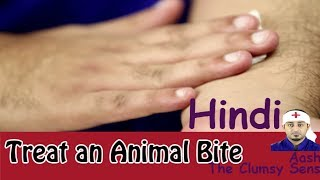 First Aid: How To Treat An Animal Bite In Hindi