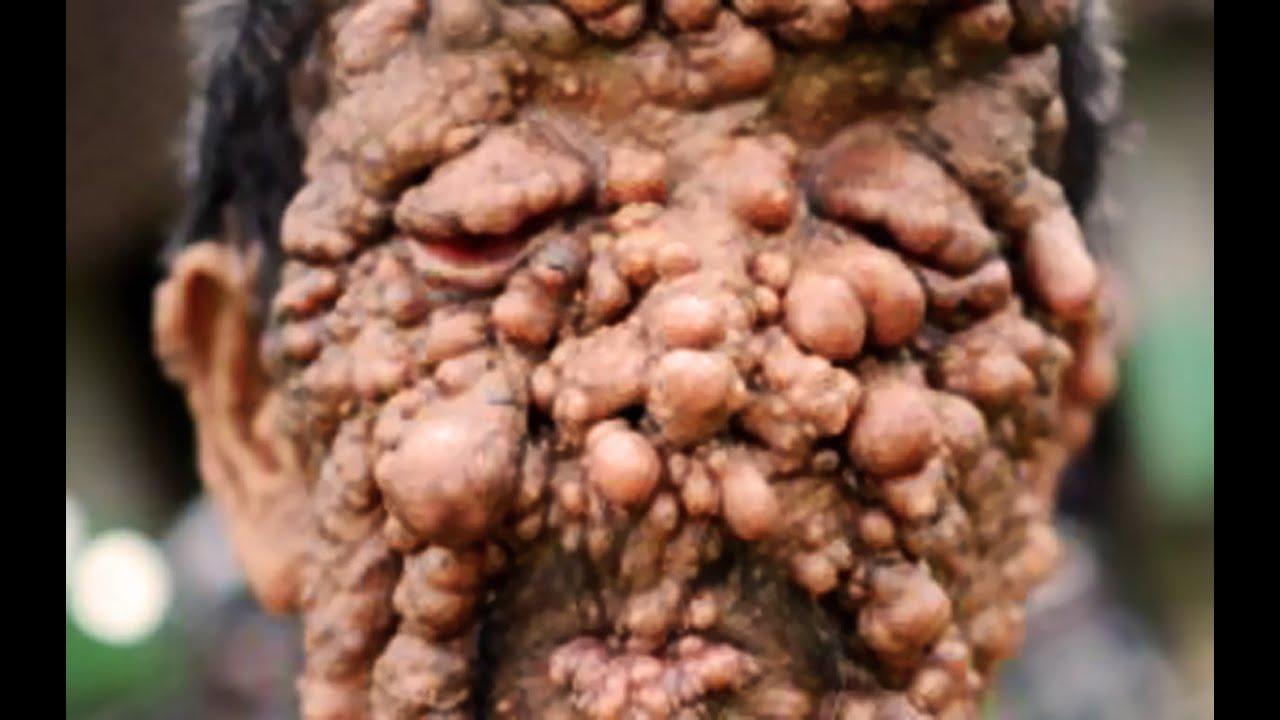 John Has Neurofibromatosis Cysts Boils Blisters Tumors