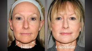 Y LIFT ® 2012 - Priscilla | Instant, Non Surgical Facelift