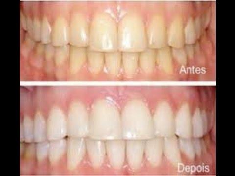 Como Clarear Os Dentes Usando Bicarbonato De Sodio Youtube