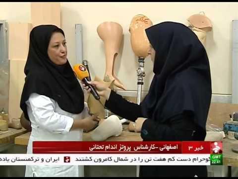 Iran health industries, Prosthesis for patients ساخت پروتز براي بيماران ايران