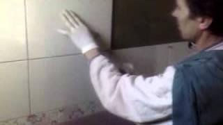 Dr.MLADEN KAJGANIC-Postavljanje keramike.flv thumbnail