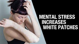 Mental Stress Increases White Patches || Aimil Healthcare || Dr. Nitika Kohli