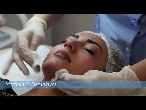 LaserLand klinikası - Üz Dərisinin Təmizlənməsi
